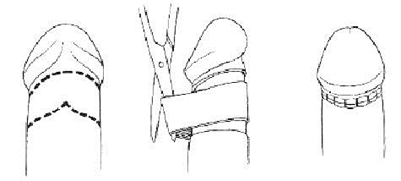 Sleeve Resection Circumcision Method